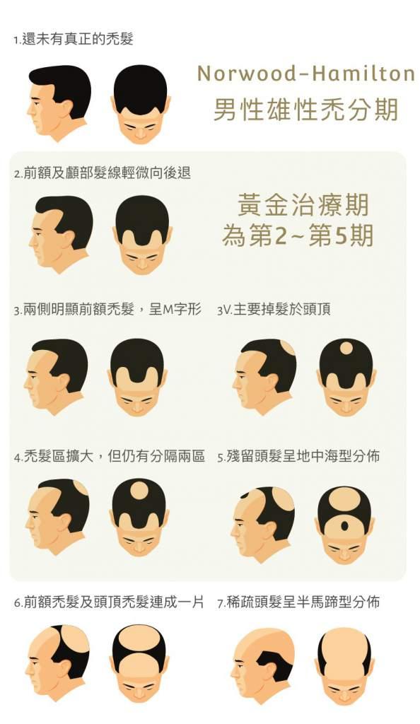 落髮分期 雄性禿 男性