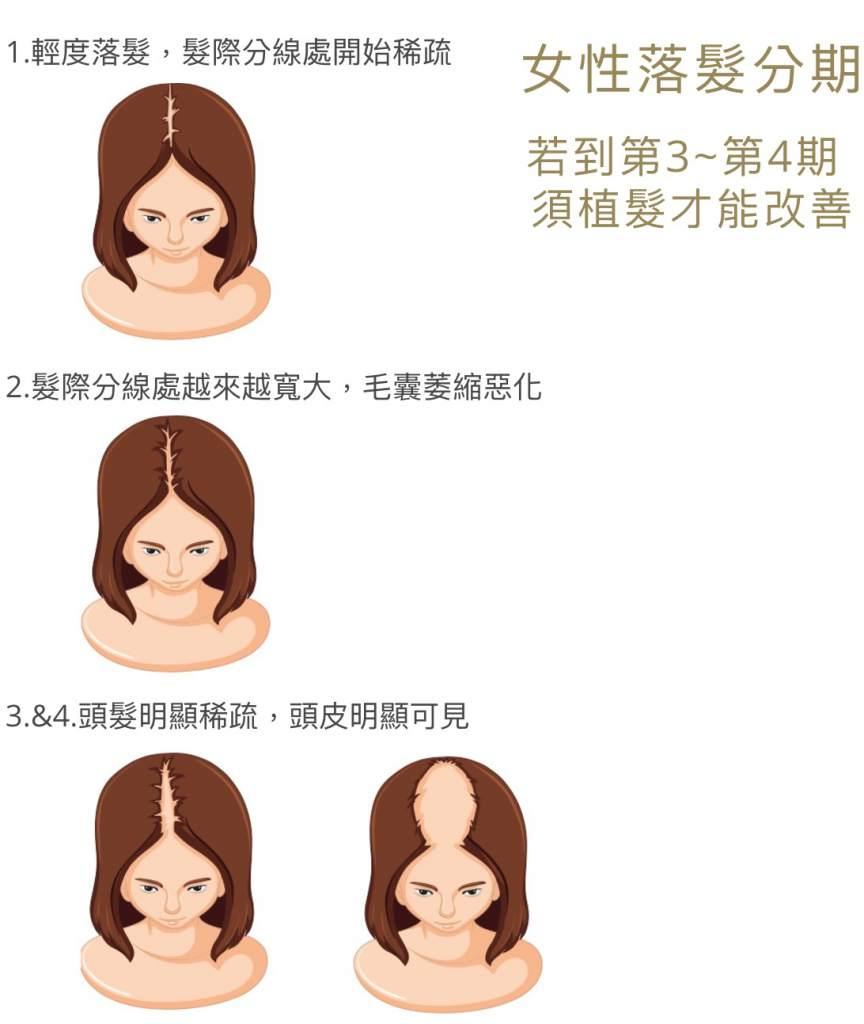落髮分期 女性