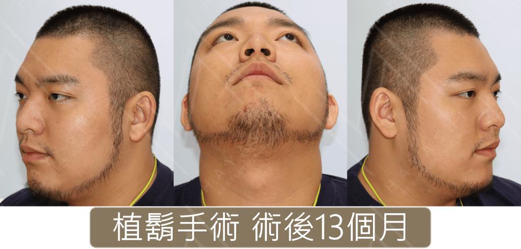 植鬍手術 術後13個月 太郎