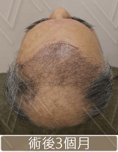 禿頭-植髮