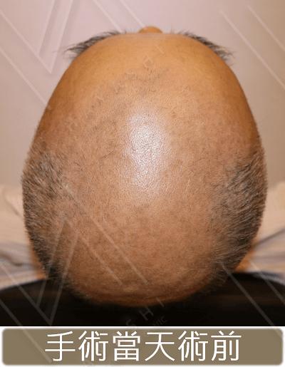 禿頭-植髮前