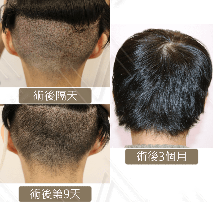 M型禿_植髮取髮區恢復狀況