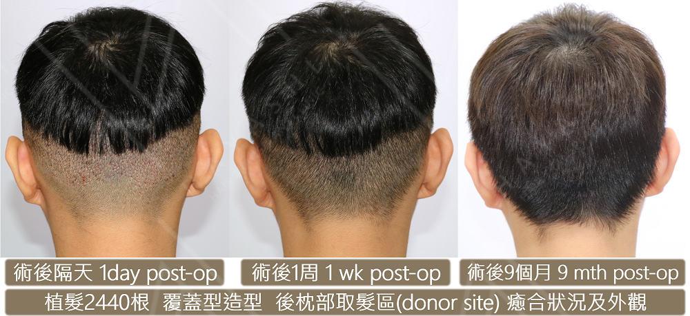 覆蓋形造型 植髮