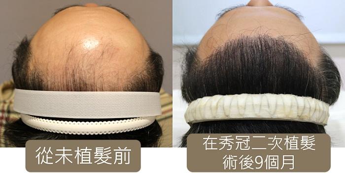兩次 植髮案例 ,植髮前左,二次植髮後右