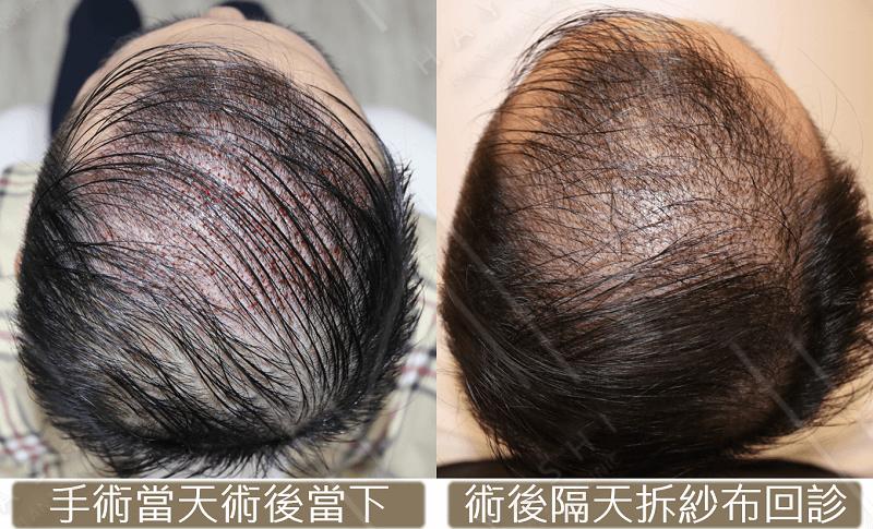 FUE 剛術後 台灣植髮 秀冠植髮診所