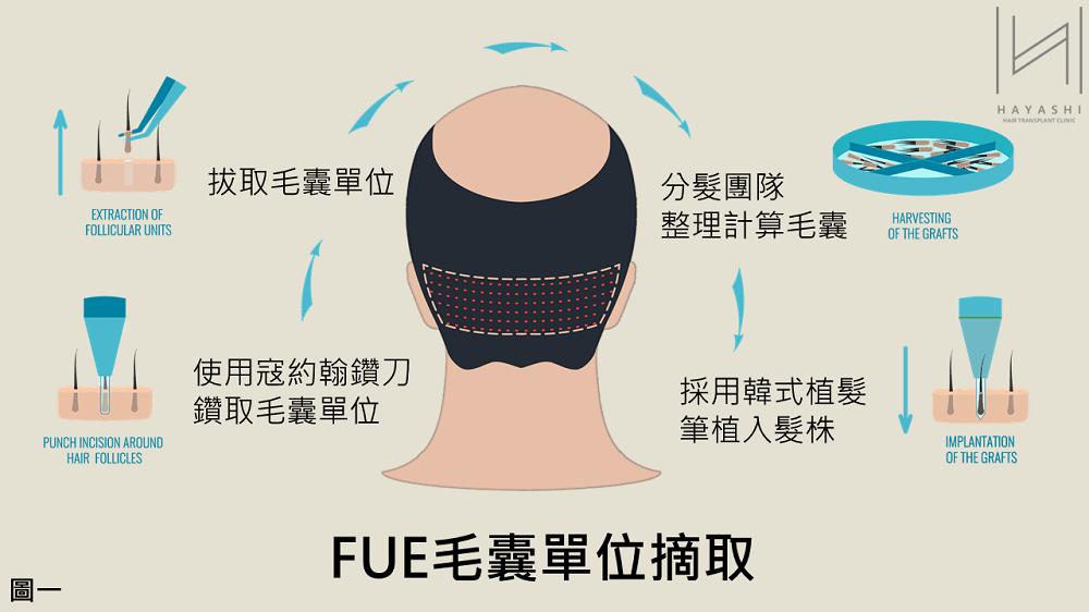 FUE 寇約翰植髮 台灣植髮 秀冠植髮診所