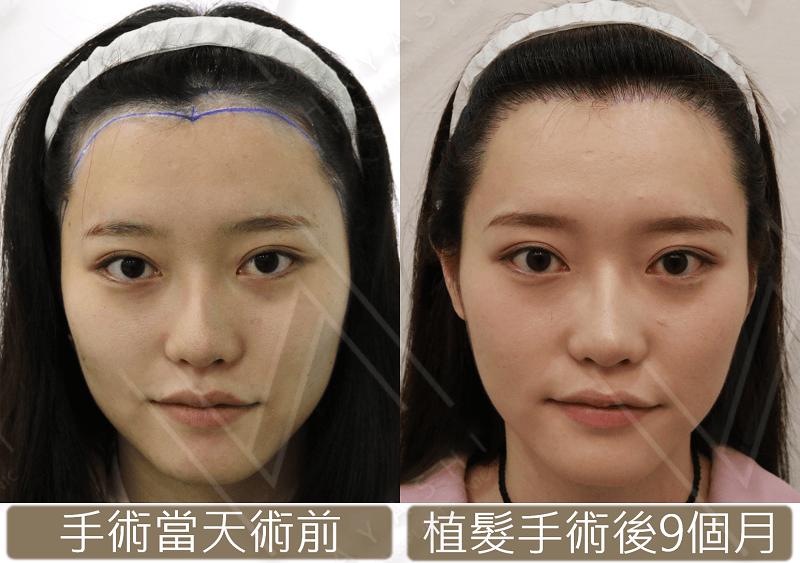 張采寧 美型植髮 秀冠植髮診所 林俊志醫師