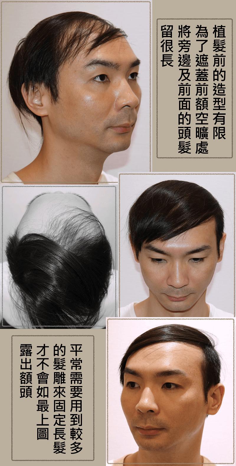 台灣植髮_植髮手術前造型