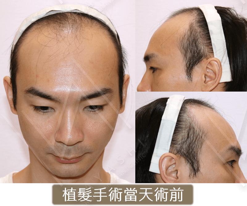 台灣植髮_植髮手術前_4043根_秀冠植髮診所