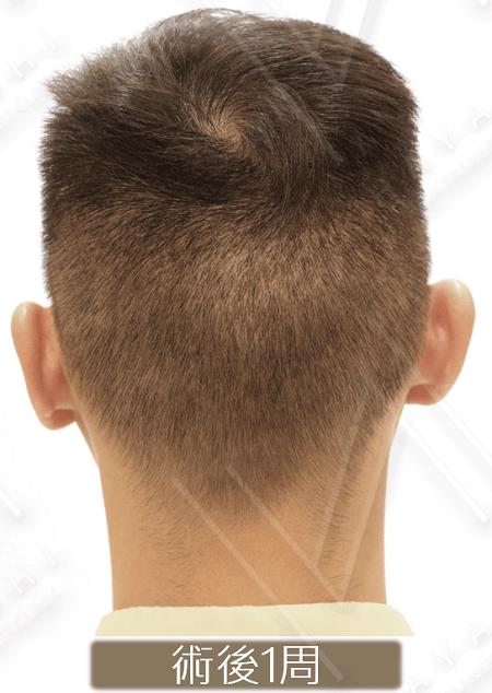 台灣植髮 免剃植髮
