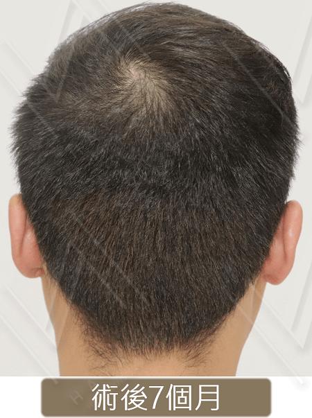 台灣植髮 後枕部取髮區_免剃植髮_術後7個月