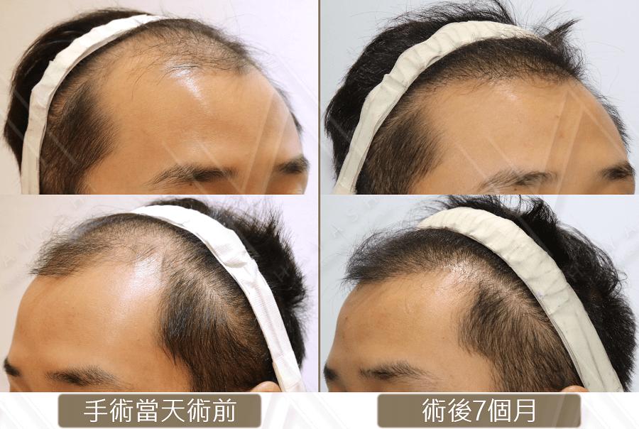 台灣植髮 前額植髮