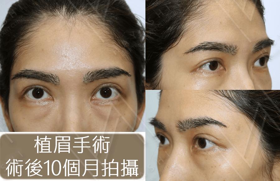 植眉 eyebrow transplant 10 months