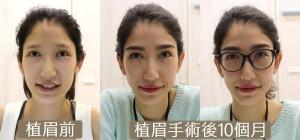 植眉 eyebrow transplant