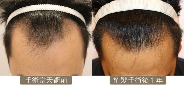 M型禿_FUE 台灣植髮 秀冠