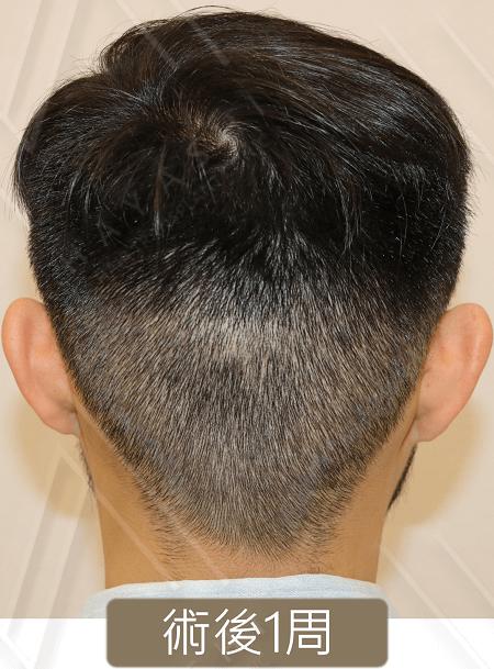 M型禿 植髮術後1周 後枕部取髮區