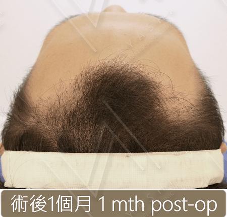 M型禿植髮_術後1個月