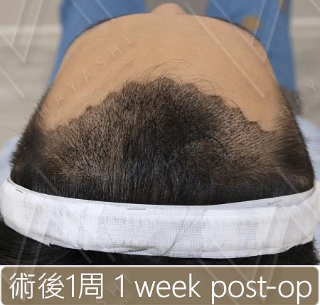 M型禿植髮_術後1周