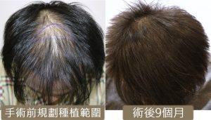植髮心得 fue before and after