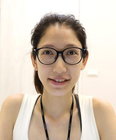 植眉手術前戴眼鏡未上妝