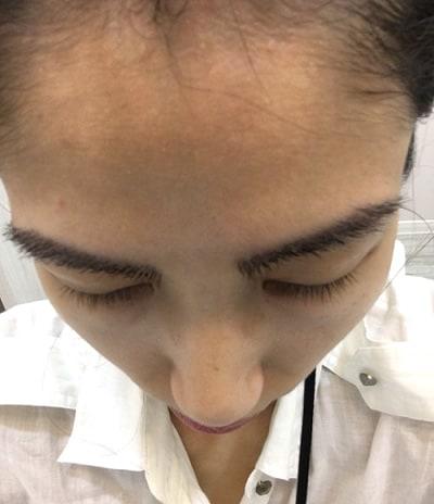 植眉毛 術後2周 立體照