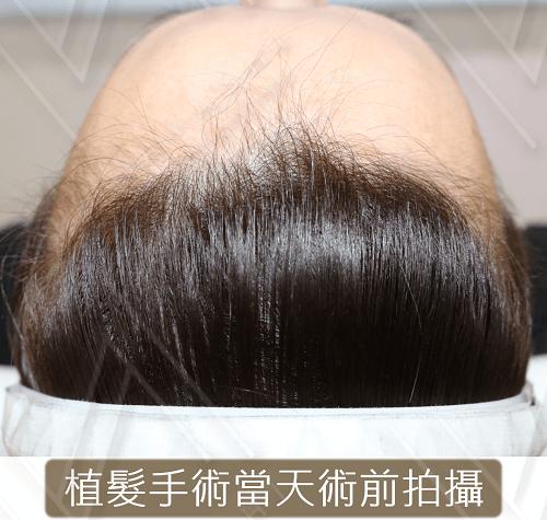 植髮 before op