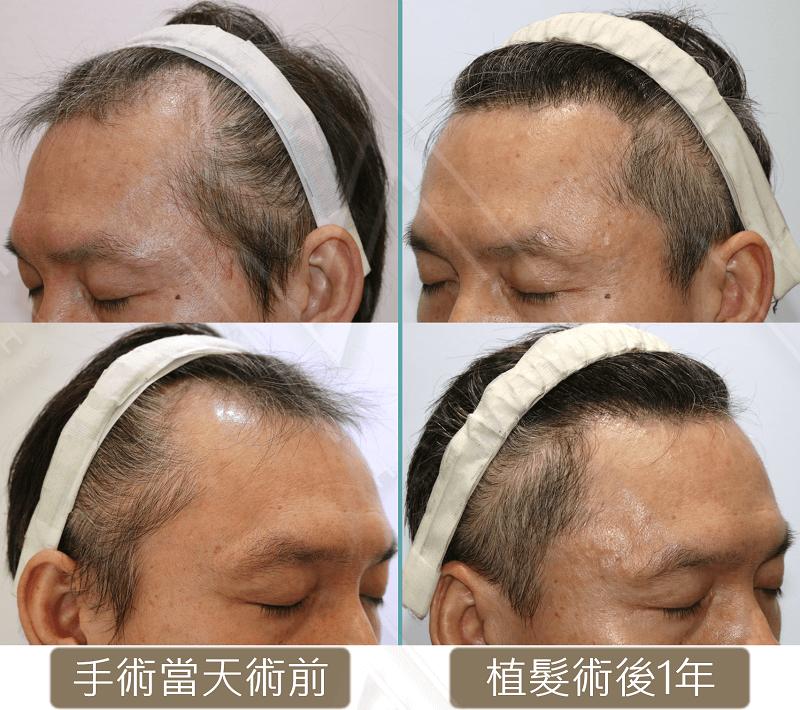 兩側額角植髮45度特寫