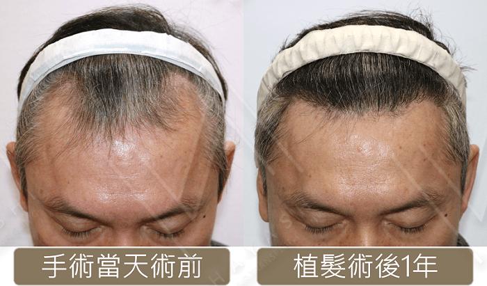M型禿植髮 術前術後1年