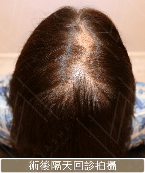 植髮手術術後隔天