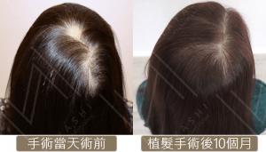 圓形禿+頂部加密 植髮前後