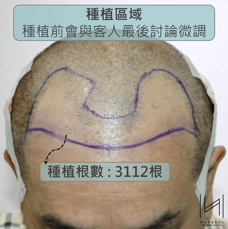 植髮規劃圖圖解