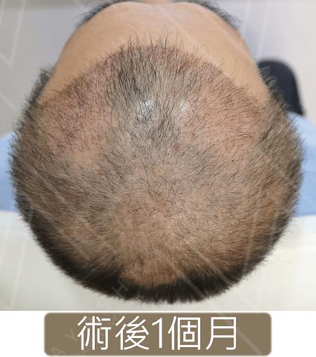 生髮療程初期1個月