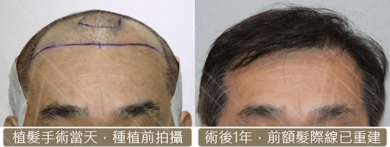 fue hair transplant 3112
