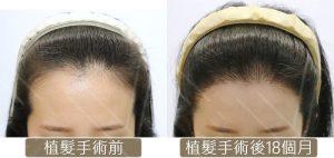 髮際線植髮 術前術後比對