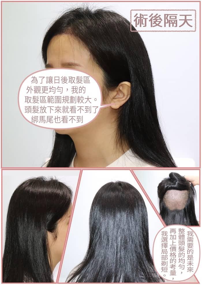 植髮髮型 術後不影響日常生活造型