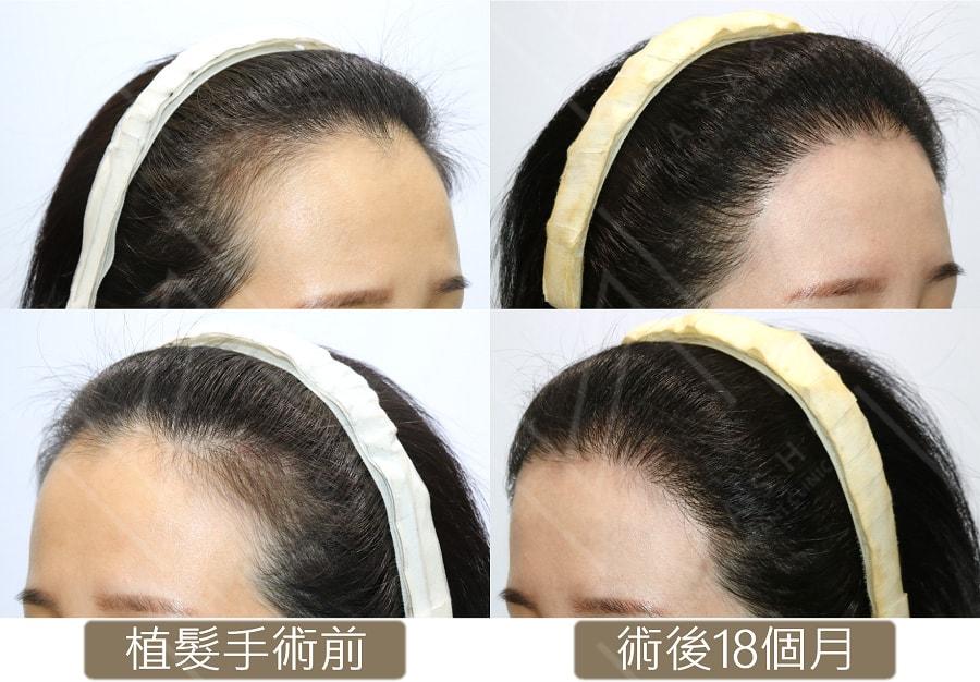 髮際線植髮 術前_術後18個月 秀冠植髮