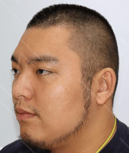 植鬍 術後13個月 左側
