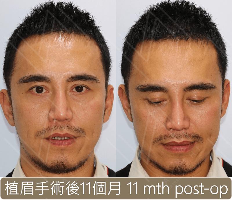植眉 手術後11個月