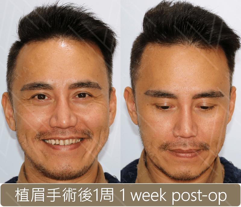 植眉 術後1周
