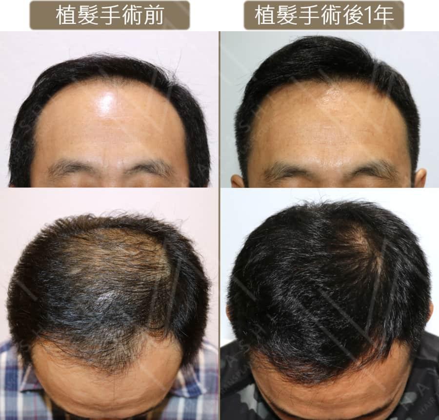植髮ptt 植髮前後正面及低頭