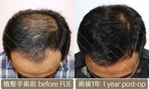 植髮ptt 術後術後比對