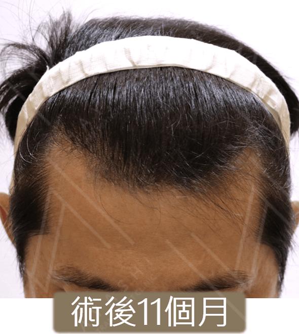 植髮案例 術後11個月 微低頭