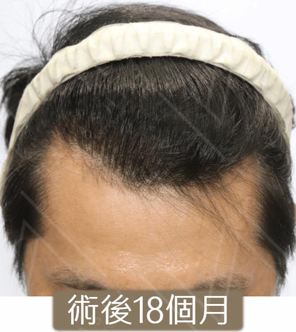 植髮案例 術後18個月 微低頭