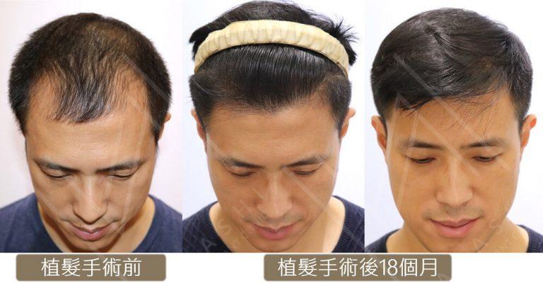 植髮費用 2711根