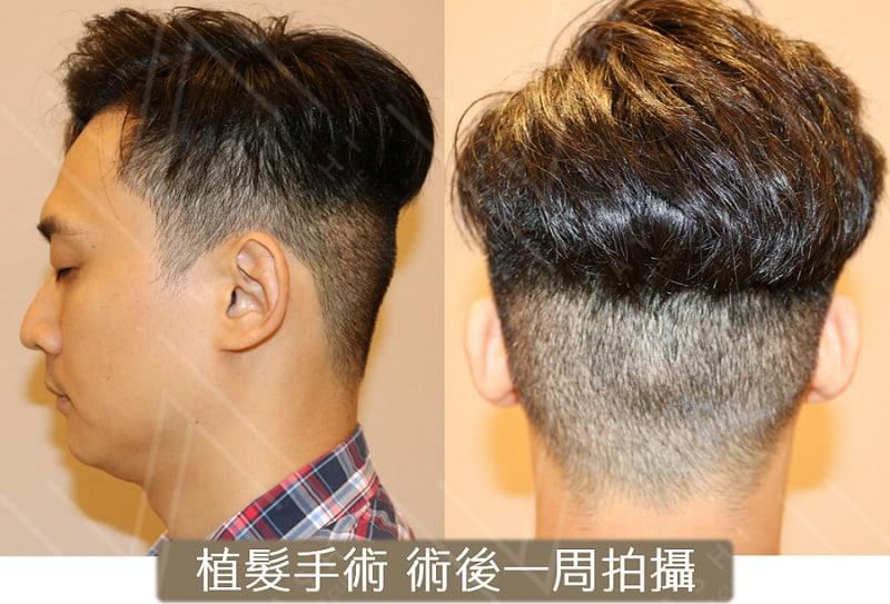 植髮剃髮 術後一周