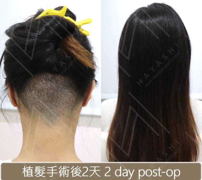 植髮際線 我很愛漂亮但我不選擇免剃植髮