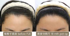 植髮際線_女性髮際線植髮手術