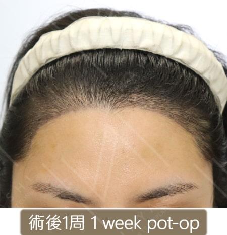 植髮際線 術後1周