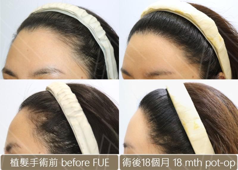 植髮際線 左側植髮前後比對圖