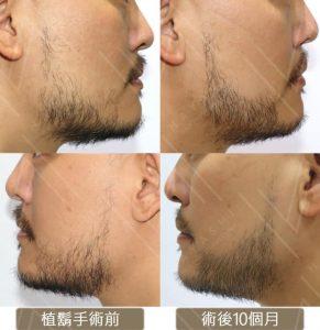 植鬍手術_設計輪廓造型